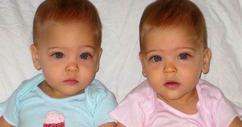 7 տարեկանում նրանց աշխարհի ամենագեղեցիկ երկվորյակներն էին անվանում. ահա թե ինչպիսի տեսք ունեն նրանք հիմա