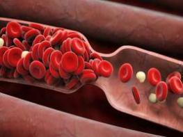 Ահա թե ինչպես կարելի է ջրիկացնել արյունը առանց դեղերի, միայն բնական միջոցներով