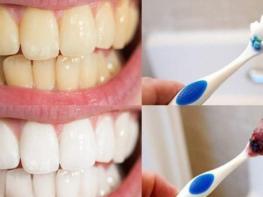 Ընդամենը 2 բաղադրիչ. խառնում եք և քսում ատամներին, արդյունքն իրոք կզարմացնի ձեզ