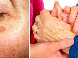 Ո՞րն է մաշկի վրայի մուգ բծերի առաջացման պատճառը և ինչպե՞ս ազատվել դրանցից․ կարևոր խորհուրդներ