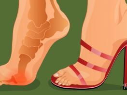 Այս հնարքով դուք ընդմիշտ կմոռանաք, թե ինչ է ցավը բարձրակրունկներ կրելուց հետո