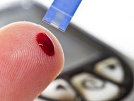 7 նշան, որ դուքչափից շատ եք շաքար օգտագործում, օրգանիզմը ազդանշաններ է ուղարկում, ՈՒՇԱԴԻՐ ԵՂԵ՛Ք