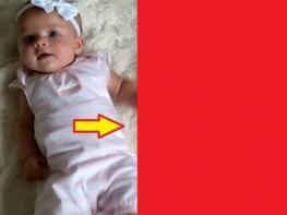 Ոչ ոք չի հավատում, որ այս 10-ամսական աղջիկները երկվորյակ են. այսպիսի բան ամեն օր չես տեսնի