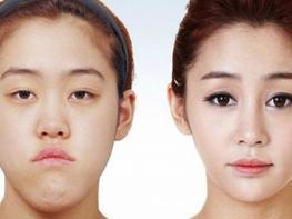 Պլաստիկ վիրաբուժության հրաշքները. 10 «առաջ և հետո» լուսանկարներ, որ շշմեցնում են անհավանականությամբ
