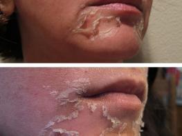Ուզում ե՞ք ձեր մաշկը շողշողա ինչպես գովազդներում. ՈՒՇԱԴՐՈՒԹՅՈՒՆ, պիլինգ տնային պայմաններում, որ կգերազանցի ձեր սպասելիքները