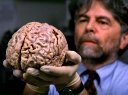 10 անհավանական փաստեր մարդու ուղեղի մասին, որոնք գլխիվայր շուռ կտան ձեր բոլոր պատկերացումները