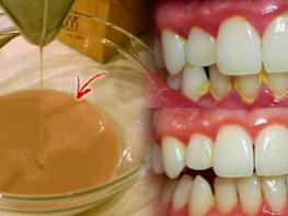 Ազատվեք ատամնափառից ԱՅՍ միջոցի օգնությամբ. սա միակ գործող միջոցն է, իմ փորձից գիտեմ