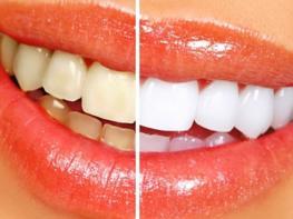 Ինչպես ազատվել ատամների դեղնածությունից
