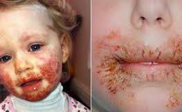 Այս անուշիկ աղջնակը հիվանդացավ այն բանի պատճառով, ինչ անում է ծնողների 99 տոկոսը