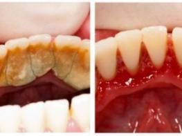 Պարզվում է՝ ատամնաքարերի մաքրումը չափազանց հեշտ գործ է, իսկ ես այդքան գումար էի վատնում ատամնաբուժարաններում