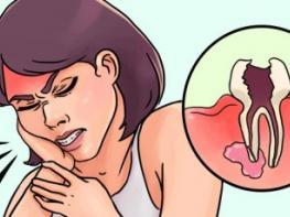 Մի քանի արագ եղանակ ատամնացավից ազատվելու համար. օգնում է անգամ իմաստության ատամի ցավի դեպքում