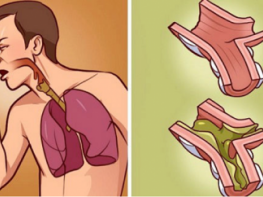When Your Lungs Drown in Mucus, This is The Best Cure! It's 100% Natural and Works in Just Few hours!