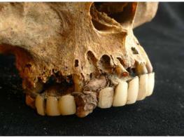 Կարծում եք, որ ատամնաբույժի մոտ գնալը սարսափե՞լի է. ապացույցներ, որ ժամանակակից ատամնաբույժներն ուղղակի հրաշք են. ՖՈՏՈՇԱՐՔ