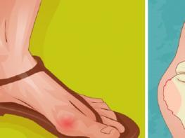 Այս բնական միջոցը օգտագործեք և առանց վիրահատական միջամտության ազատվեք ոտքի ոսկորի գերաճից