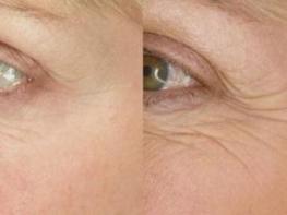 Դիմակներ աչքերի շուրջ կնճիռներից ազատվելու համար, եթե ցանկանում եք մարմարյա մաշկ ունենալ, փորձեք այս դիմակները
